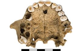 Oberkiefer mit kariösen Defekten an den Zähnen und Abszessen im Zahnwurzelbereich, Enns/Steinpass – Grab 375, Individuum 1, 25–35 Jahre. Foto: Oö. Landesmuseum